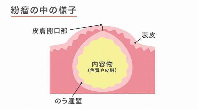 粉瘤の手術
